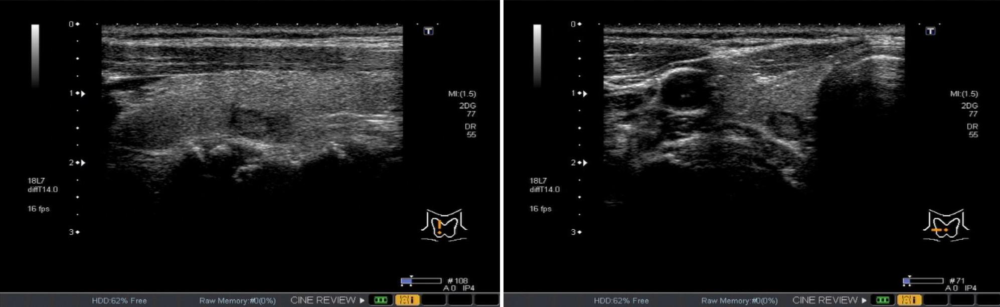 甲状腺エコー画像の例。縦断像(左)、横断像(右)、ともに中央に腫瘍がみられる