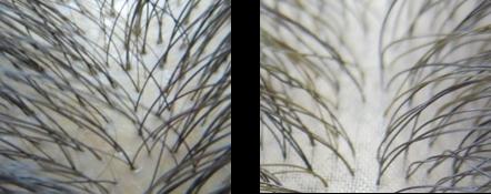 左:頭皮(拡大図) 右:「ダブルアップ」商品