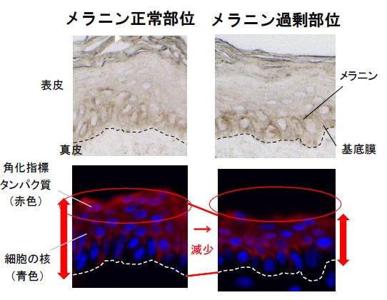 ▲図1 メラニン正常部位とメラニン過剰部位の角化指標タンパク質(赤色)の分布と細胞核(青色)の並びを比較