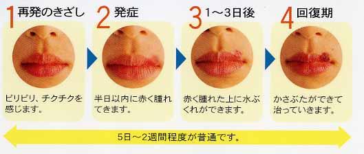 かさぶた 口唇ヘルペス [医師監修・作成]口唇ヘルペスの治療:病院での治療薬(塗り薬・飲み薬)や市販薬など