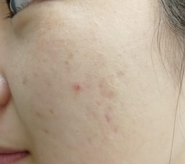 ニキビ・ニキビ跡が残る頬(30代女性)