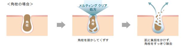 角栓の場合