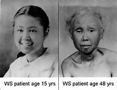 20歳過ぎから急速に老化する「早老症ウェルナー症候群」の全国疫学調査を実施し、実態の把握へ|国立大学法人千葉大学のプレスリリース