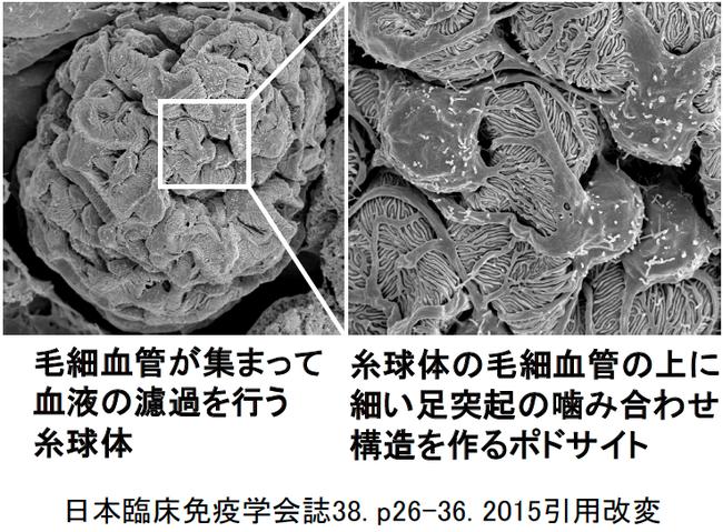 図2. 走査電子顕微鏡で見た糸球体とポドサイト