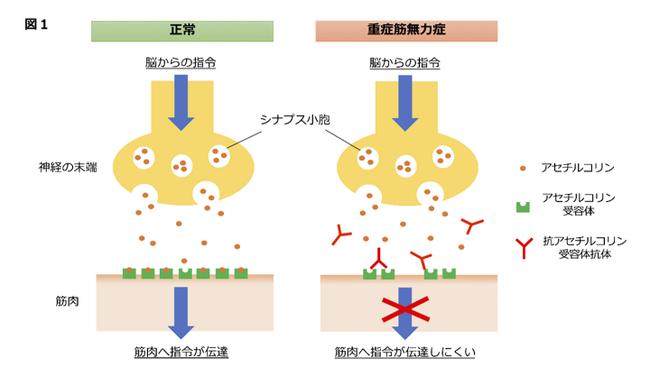 図1:アセチルコリンの作用と重症筋無力症の仕組み