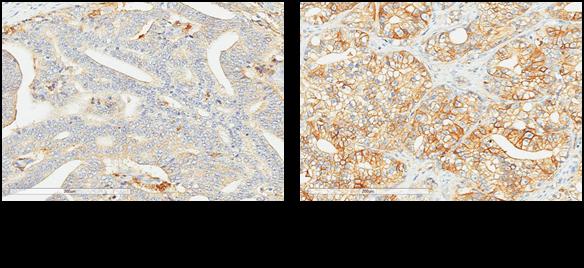 図2 正常の前立腺とがん部の 4F2hc 発現の比較。 4F2hcが発現している部分は茶色く染まる