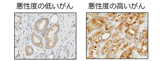 図2 手術検体のLAT3の免疫染色。 悪性度の高いがんでLAT3がより茶色く染まり、多く発現していることを示している。
