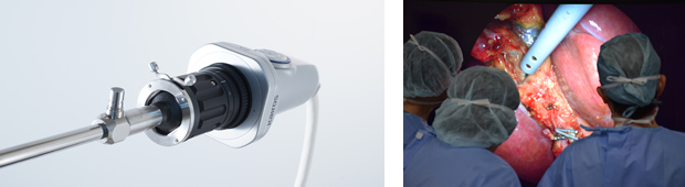 8K内視鏡カメラ(左)と、8K内視鏡カメラを使用した手術イメージ映像(右)(画像はエア・ウォーター・バイオデザイン株式会社様提供)