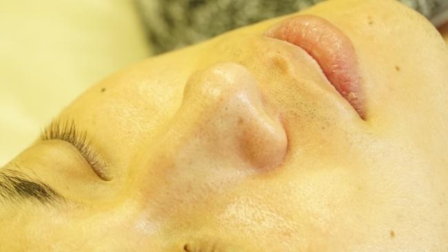男性も始めやすいダウンタイムの少ない毛穴治療 ハイドラフェイシャルの施術直後