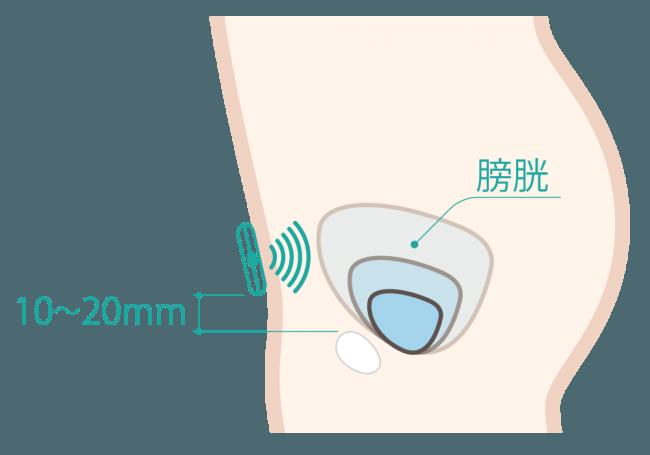 DFreeの仕組み: 下腹部にセンサー部分を装着し、超音波で膀胱の変化を捉える