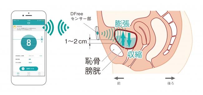 DFreeの仕組み: 下腹部に装着した本体の超音波で膀胱の変化を捉え、携帯端末にお知らせする