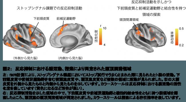 図2: 反応抑制における脳活動、探索により同定された頭頂間溝領域