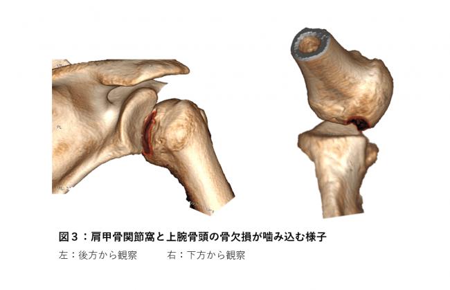【図3】肩甲骨関節窩と上腕骨頭の骨欠損が噛み込む様子