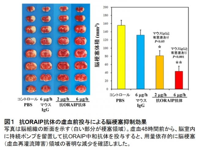 図1 抗ORAIP抗体の虚血前投与による脳梗塞抑制効果