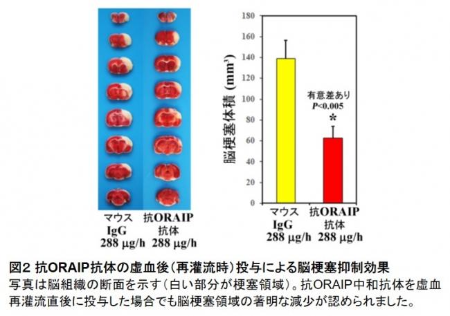 図2 抗ORAIP抗体の虚血後(再灌流時)投与による脳梗塞抑制効果