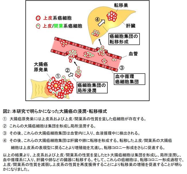 図2:本研究で明らかになった大腸癌の浸潤・転移様式