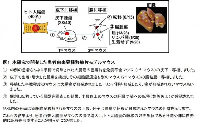 図1:本研究で開発した患者由来異種移植片モデルマウス