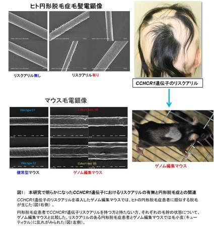 図1: 本研究で明らかになったCCHCR1遺伝子におけるリスクアリルの有無と円形脱毛症との関連