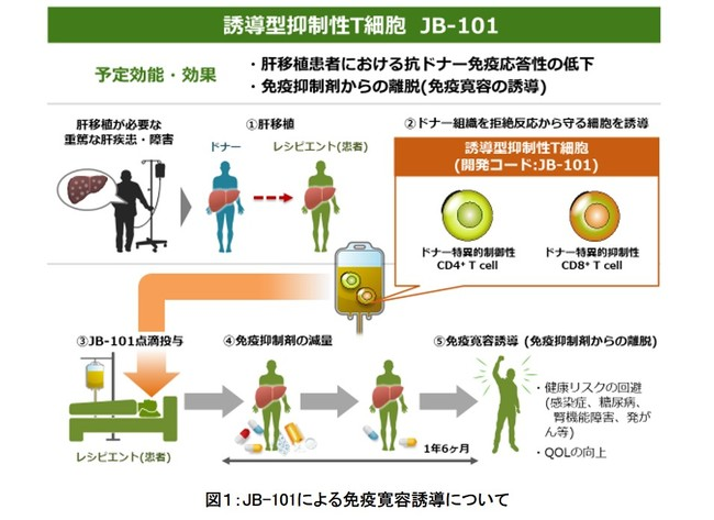 免疫抑制剤の要らない肝移植を普及させるための医師主導治験を開始 ...