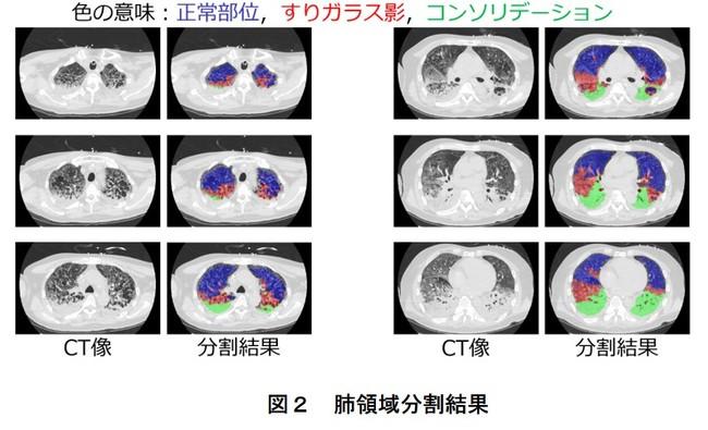 図2 肺領域分割結果