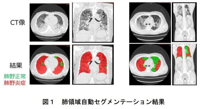 図1 肺領域自動セグメンテーション結果