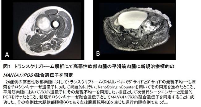 図1 トランスクリプトーム解析にて高悪性軟部肉腫の平滑筋肉腫に新規治療標的のMAN1A1/ROS1融合遺伝子を同定
