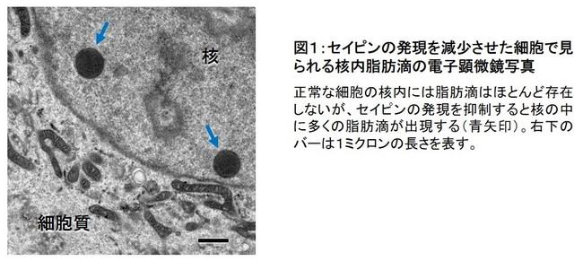 図1:セイピンの発現を減少させた細胞で見られる核内脂肪滴の電子顕微鏡写真