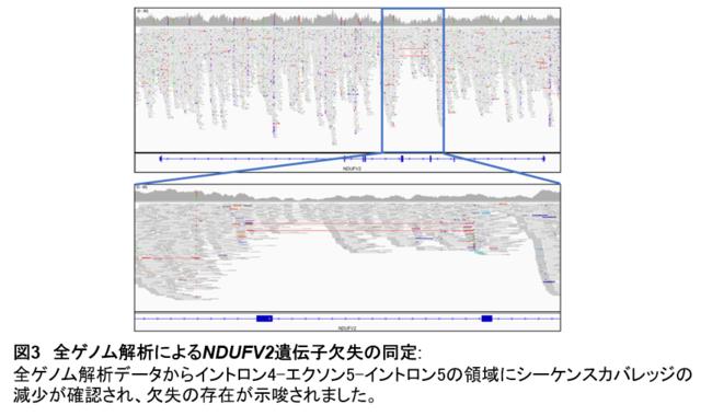 【図3】全ゲノム解析によるNDUFV2遺伝子欠失の同定