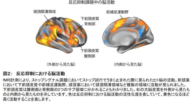 図2: 反応抑制における脳活動
