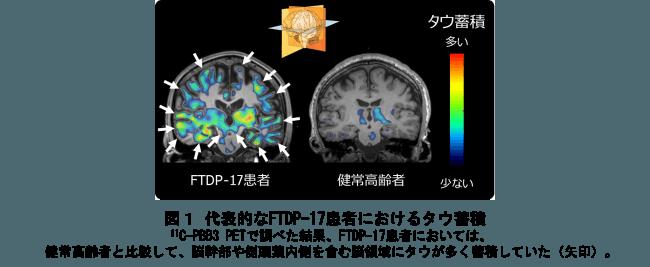 図1 代表的なFTDP-17患者におけるタウ蓄積