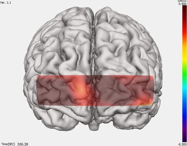 切り紙で前頭葉が活性化している状態