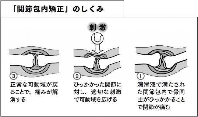 ↑酒井先生が編み出した「関節包内矯正」のしくみ。これをセルフケア用に改良したのが本書で紹介する「関節ストレッチ」の数々。