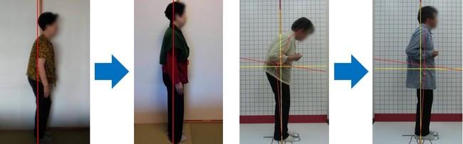 週3回 3ヶ月 姿勢改善 腰痛改善            週一回 1ヶ月 姿勢改善 歩行改善