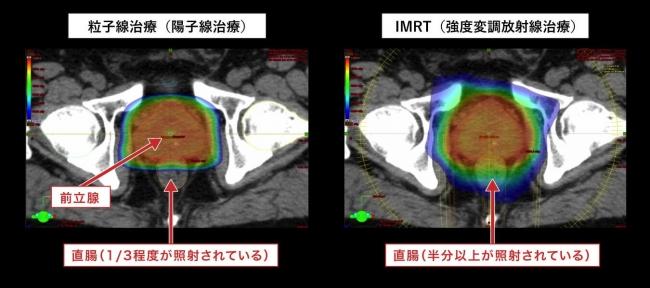 図2:IMRT(強度変調放射線治療)と「粒子線治療(陽子線治療)」の照射される線量 分布比較