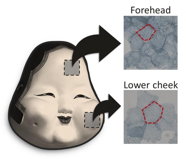 たるみのある部位の細胞と、たるみのない部位の細胞の表面積の違い