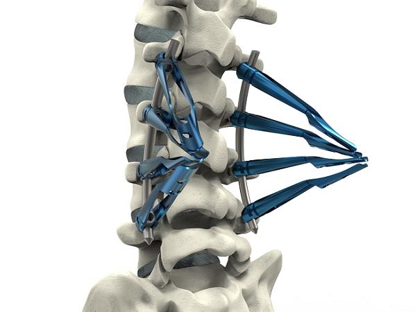 NOVA 最小侵襲脊椎固定システム