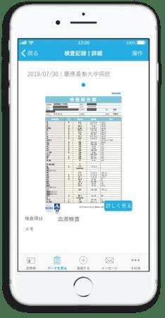 MeDaCaアプリ上での検査結果表示イメージ