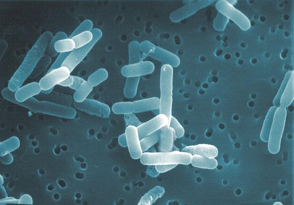 ロイテリ菌(電子顕微鏡写真)