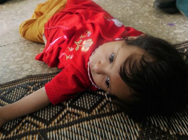 貧血、くる病などに苦しむガザの子どもたち