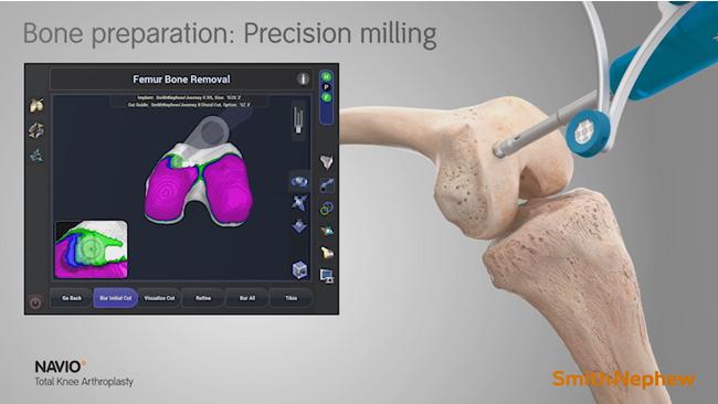 図3:ロボットは正確で安全な骨掘削を支援