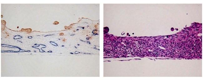 3D細胞培養技術により作製した人工組織の標本切片 左図(切片の免疫染色結果):組織内に血管管腔が形成(がん部は茶色、微小血管は青色) 右図(切片のHE染色結果):細胞が立体的に積層 (細胞核は紫色)