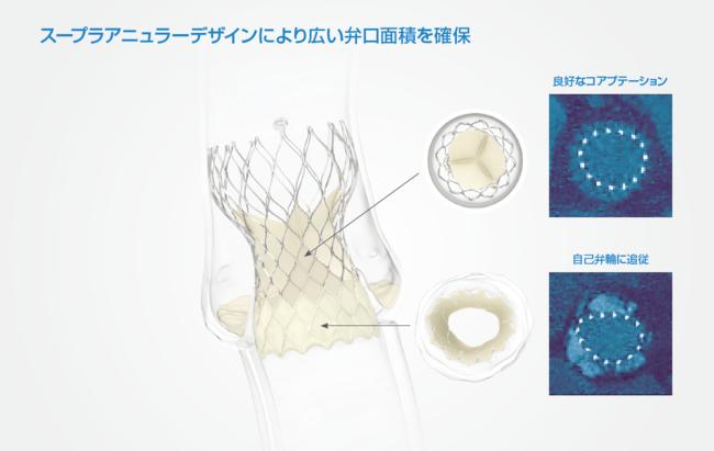 図1 スープラアニュラー生体弁。患者さんご自身の大動脈弁の位置よりも高い位置(スープラアニュラーポジション)にて機能するため、 より広い弁口面積を確保することができ、よりスムーズな血流の再現と血行動態の改善が期待されます