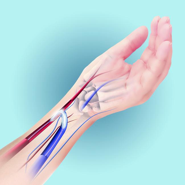 図2 人工的に動脈と静脈を吻合したシャントにより、再狭窄した血管をIN.PACT AV DCBのバルーン拡張で治療している様子のイメージ