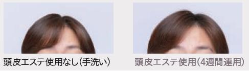 「髪の根元のボリューム」