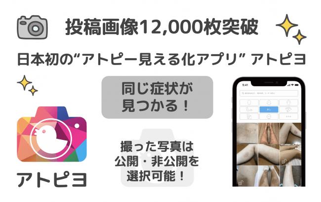 投稿画像12,000枚突破-アトピヨ