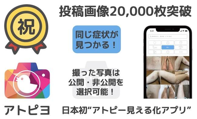 投稿画像2万枚突破-アトピヨ
