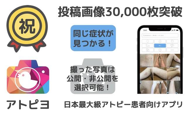 投稿画像3万枚突破-アトピヨ