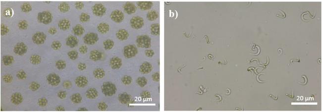 写真:マレーシアで単離した微細藻類 a)コエラストルムとb)モノラフィジウム