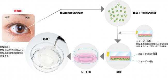 図:自家培養角膜上皮「ネピック」の移植