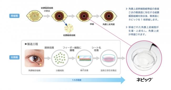 (図1)移植フロー